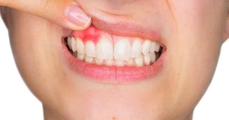diş-eti-hastalığı